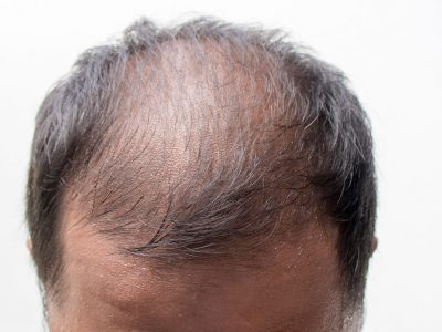 Hair Loss Treatment Male Type Hair Loss Prices Ankara
