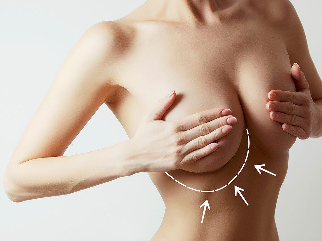 Göğüs büyütme ameliyatı ile göğüslere dolgunluk kazandırılır.