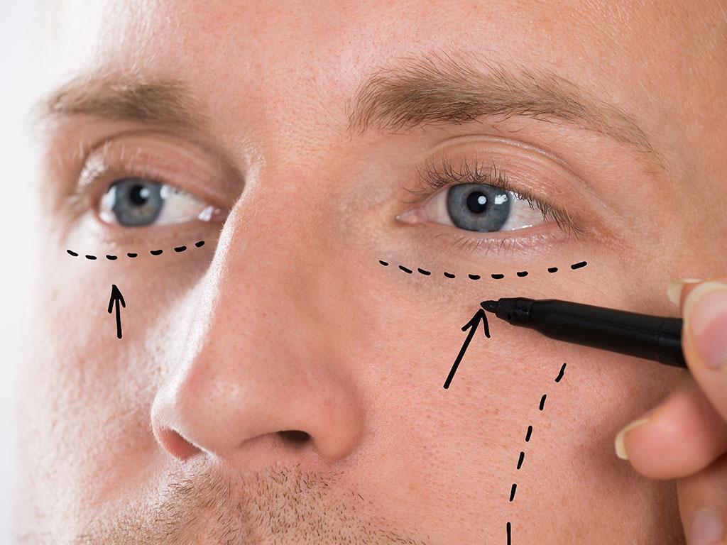Göz kapağı estetiği ameliyatı ile alt göz kapaklarındaki torbalanmalar ve sarkmalar giderilir.