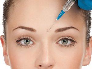 Kaş ortası botoks işlemi ile kaş arasındaki kırışıklıklar giderilir.