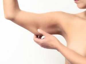 Kol inceltme estetiği ile kol bölgesindeki sarkmalar giderilir.