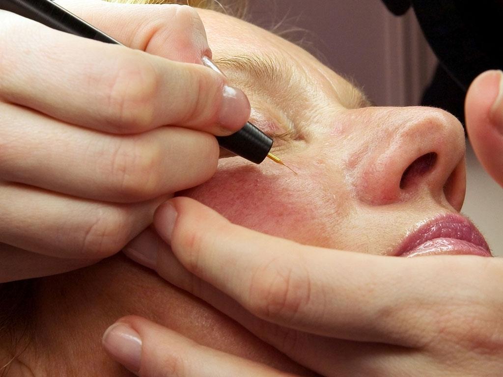 Lazer kılcal damar tedavisi ile yüz bölgesindeki kılcal damarlar giderilir.