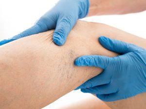 Lazer varis tedavisi ile genişleyen toplar damarlar daraltılır.