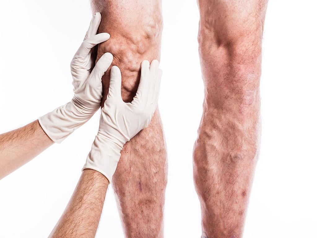 Lazerle varis tedavisi ile toplar damar genişlemesi giderilir.