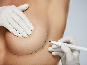 Meme dikleştirme ameliyatı ile sarkma ve gevşeklikler toparlanarak daha dik bir göğüs oluşturulur.