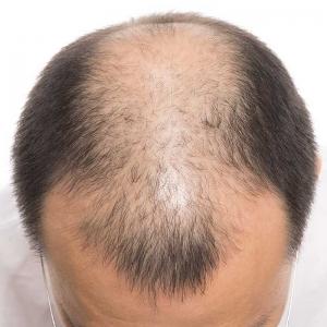 Saç Ekimi ile İlgili Merak Edilenler