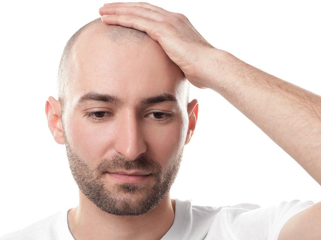 Saç dökülmesi tedavi yöntemleri saç prp, saç mezoterapisi ve saç ekimidir.