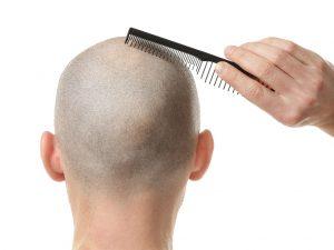 Saç dökülmesi tedavileri saç ekimi ile birlikte prp ve mezoterapi olmaktadır.
