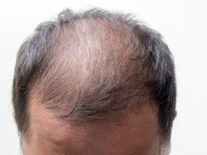 Saç dökülmesi tedavi yöntemlerinde prp ve mezoterapi kullanılmaktadır.