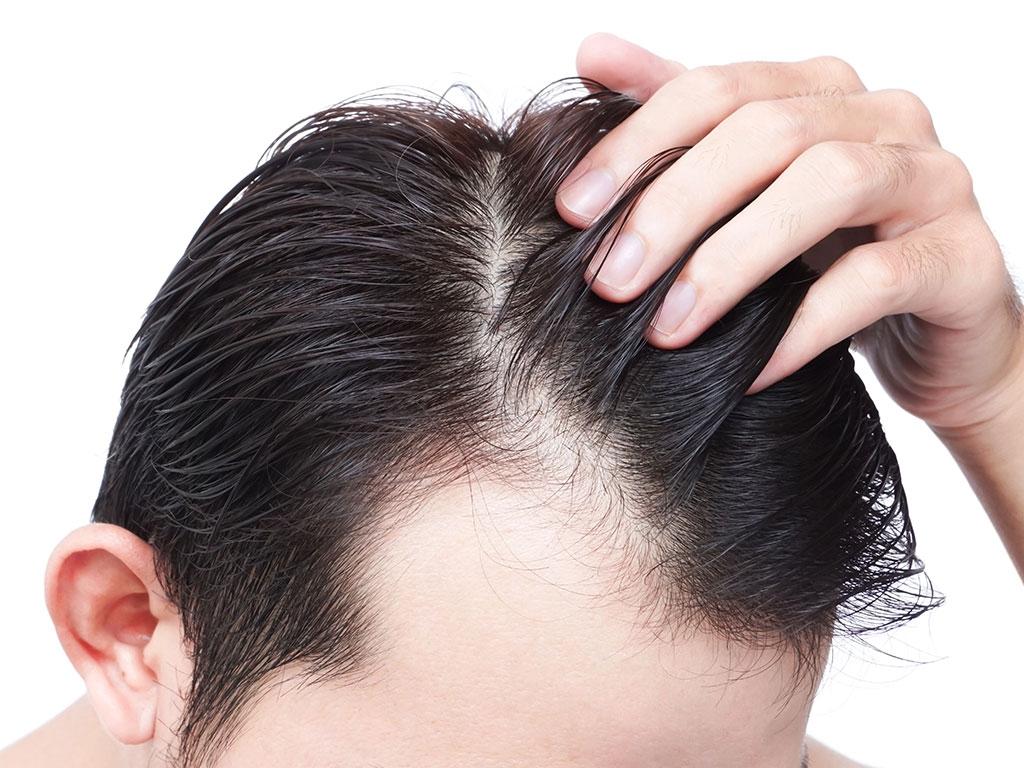 Saç ektirme işleminde fue tekniği kullanılmaktadır.