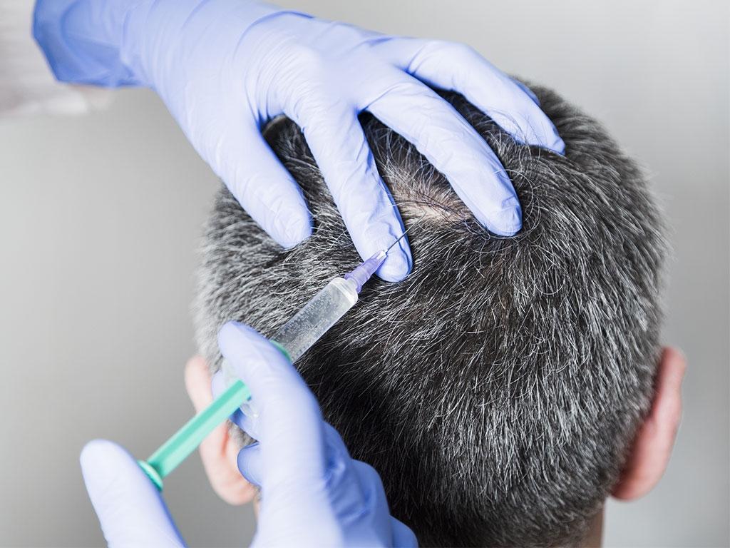 Saç mezoterapi uygulamasında saçın gereksinim duyduğu bileşenler enjekte edilir.