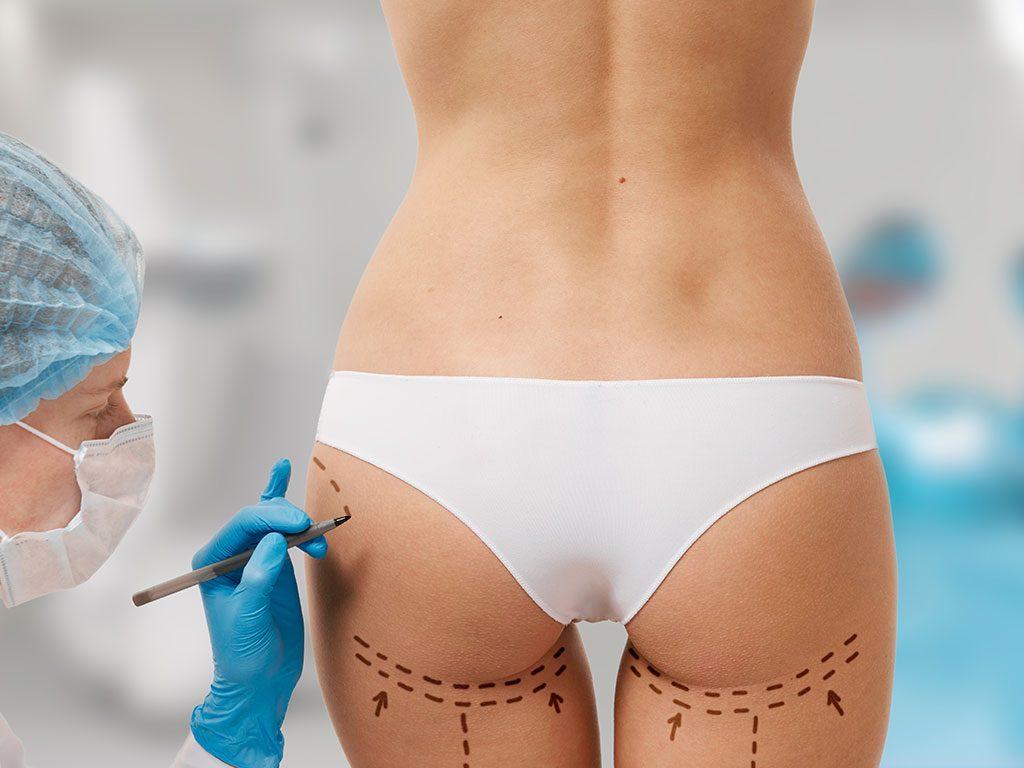 Yağ aldırma ameliyatı ile vücudun belirli bölgelerindeki yağlar alınır.
